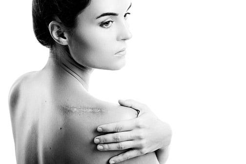 Dr.-Claudia-Gschnitzer-Behandlungen-Körper-Narbenkorrektur